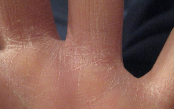 Тріщинки на  руках і методи боротьби з ними